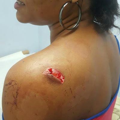 Bridgez stabbed in the head!!!!!